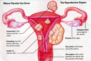 Nzingha lecture 36. Fibroids, What Sisters need to know   Blacknet UK